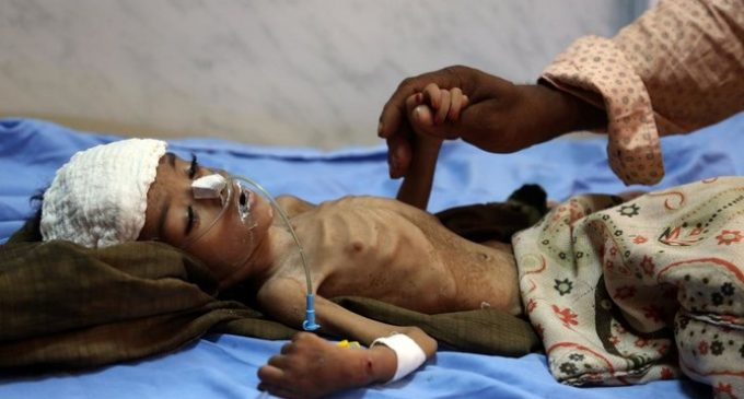 Houthi militia refuses to give access to WHO for anti-cholera inoculation program